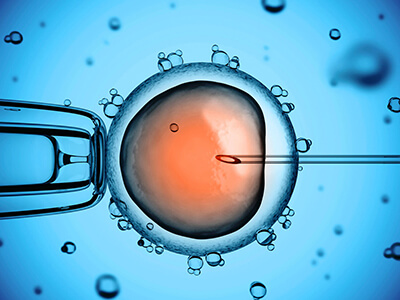 ICSI male infertility sperm